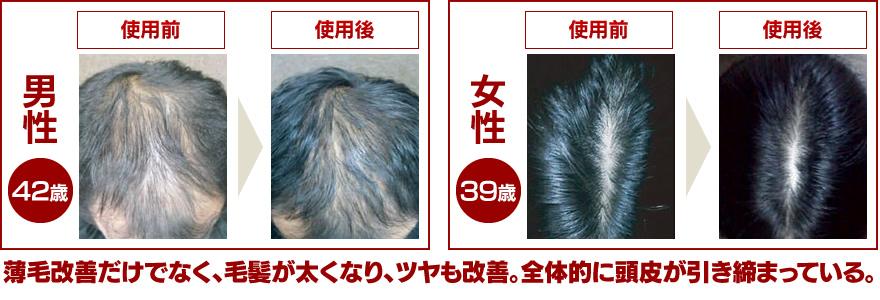 薄毛改善だけでなく、毛髪が太くなり、ツヤも改善 全体的に頭皮が引き締まっている。